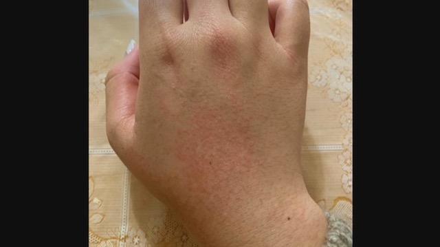 スタバで消毒液入れ違い… 客の女性が化学熱傷